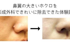 鼻翼の大きいホクロを形成外科できれいに除去できた体験談