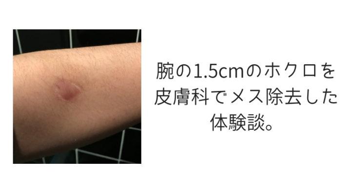 腕の1.5cmのホクロを皮膚科でメス除去した体験談。