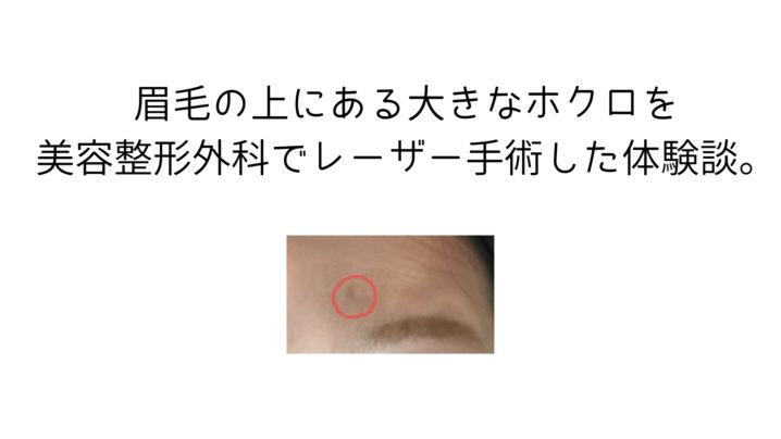 眉毛の上にある大きなホクロを美容整形外科でレーザー手術した体験談。