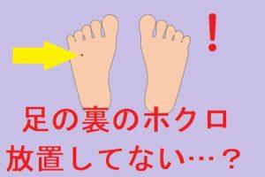 足の裏のホクロ