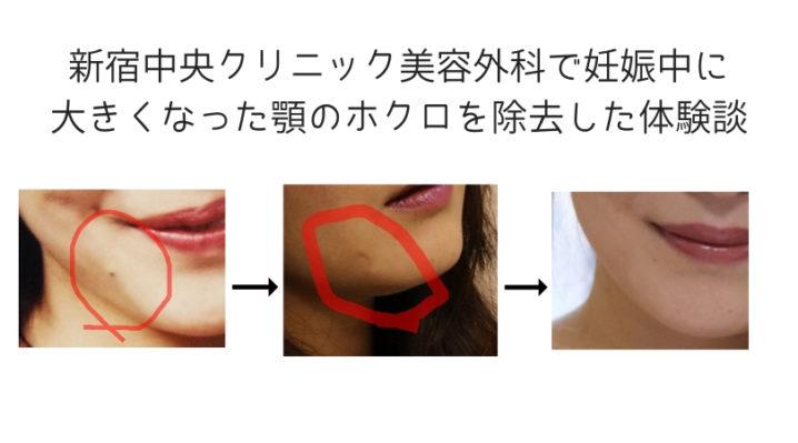 新宿中央クリニック美容外科で妊娠中に大きくなった顎のホクロを除去した体験談